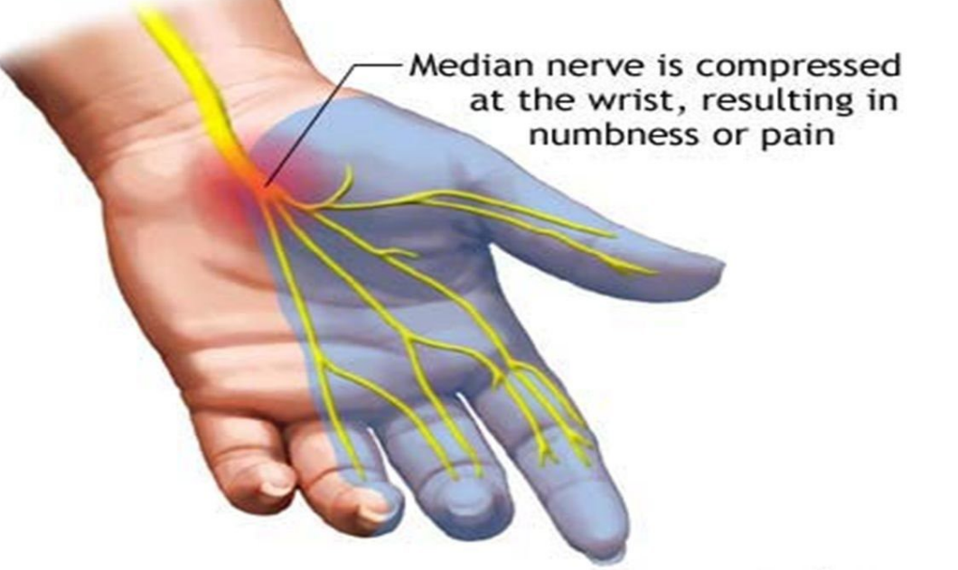 What Is Carpel Tunnel Syndrome? (Internet Addiction)
