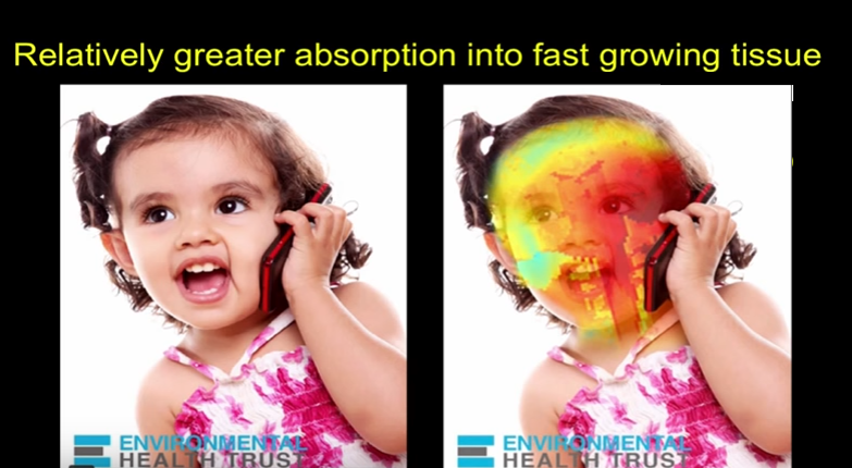 Mobile Phone Radiation (6 Minutes) - Child
