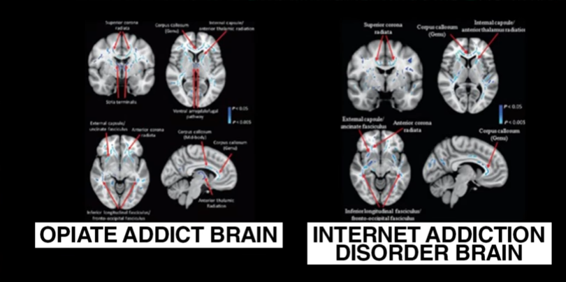 Internet Addiction: Opiate Addiction Comparison